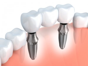 Your dentist for a dental implant in Dallas.