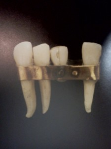 dental history, tooth replacement