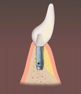 dental implant with bone graft