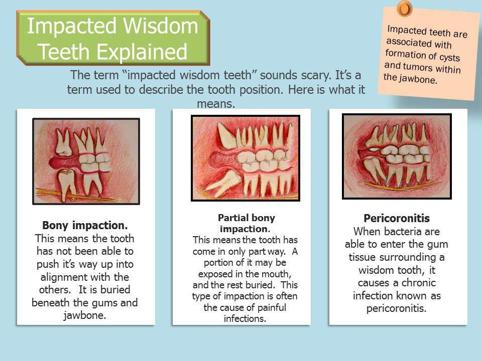 wisdom swelling teeth to reduce heat