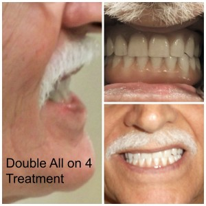 implant denture pictures