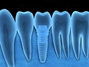 How can you take care of your new dental implant in Dallas? Follow these tips from the team at Texas Wisdom Teeth.