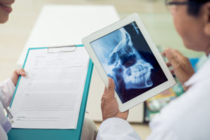 dentist holding image of jaw