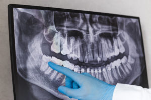 X-ray of a woman who needs wisdom teeth extractions in Dallas.