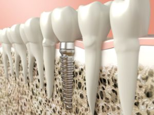 Dental implant placed after bone graft in Dallas.